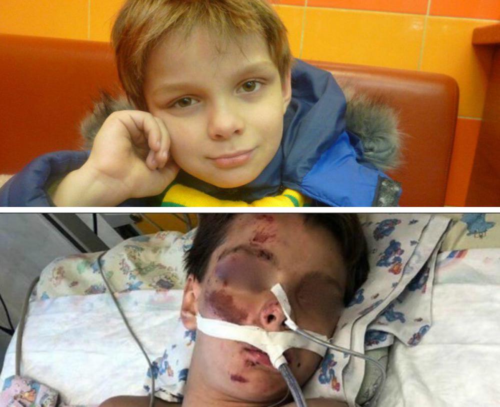 Мать мальчика, найденного в Краснодаре без сознания, ищет свидетелей ЧП