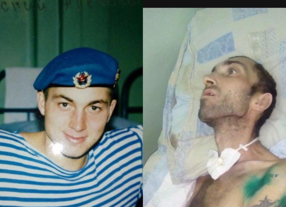 На Кубани ветерана чеченской войны после ДТП отправили в хоспис умирать