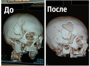 Кубанские нейрохирурги совершили чудо в канун Нового года и вернули к жизни ребенка
