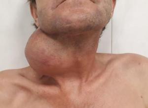 Гигантскую опухоль удалили мужчине в ЗИПовской больнице в Краснодаре