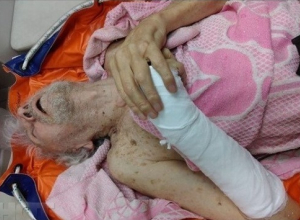 Брошенный на произвол пенсионер с переломом стал причиной проверки в больнице Новороссийска