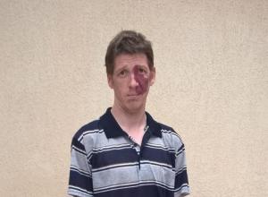 16-летние подростки в Усть-Лабинске избили инвалида: гематомы на голове, сломано ребро