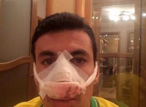 В Саранске защитнику «Кубани» Шандао сломали нос