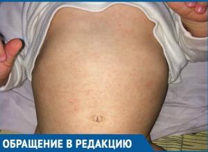 «Даже не знаю, куда вас определить», - жительница Приморско-Ахтарска пожаловалась на местную больницу