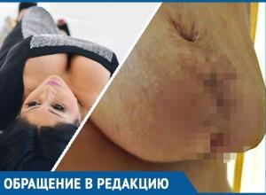 «Он отрезал грудь и зашил ее, как труп в морге», - жительница Кубани об ошибке онколога