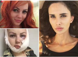 Жена игрока ФК «Краснодар» Алана Мамаева решила помочь изуродованной девушке из Апшеронска