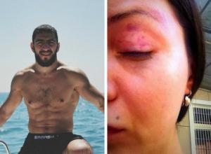 Московская модель обвинила олимпийского борца в избиении в Сочи