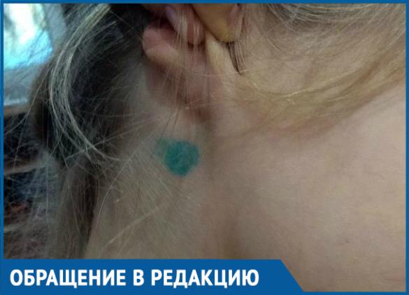 Собаке удалили клеща более профессионально, чем моей дочери, - жительница Кропоткина
