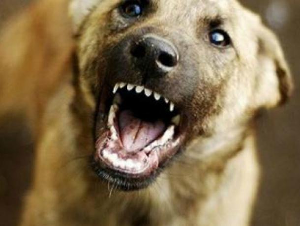 На школьницу Динского района напала злая собака: девочка в больнице