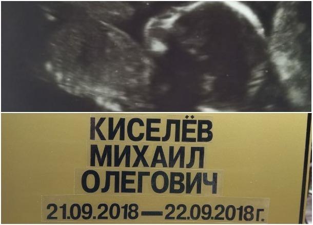 Вещи на выписку положили в гроб: потерявшей младенца краснодарке врач предложила родить нового