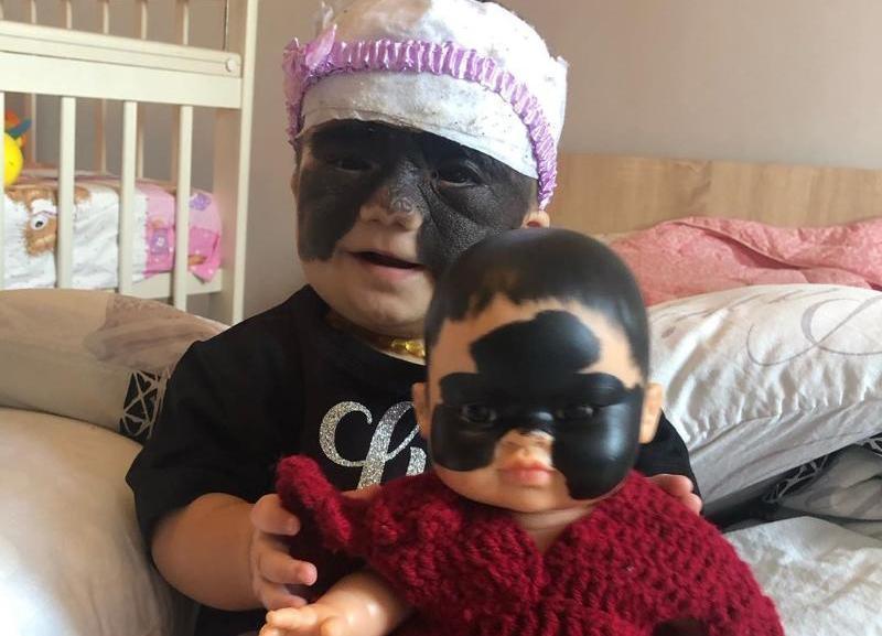 «Luna's Doll»: девочке с «маской Бэтмена» в Краснодаре подарили куклу с родимым пятном, как у нее