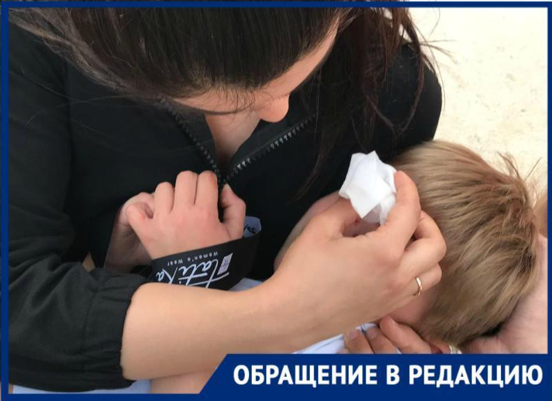 Рваную рану лица получил маленький москвич из-за велосипедистки в парке Галицкого